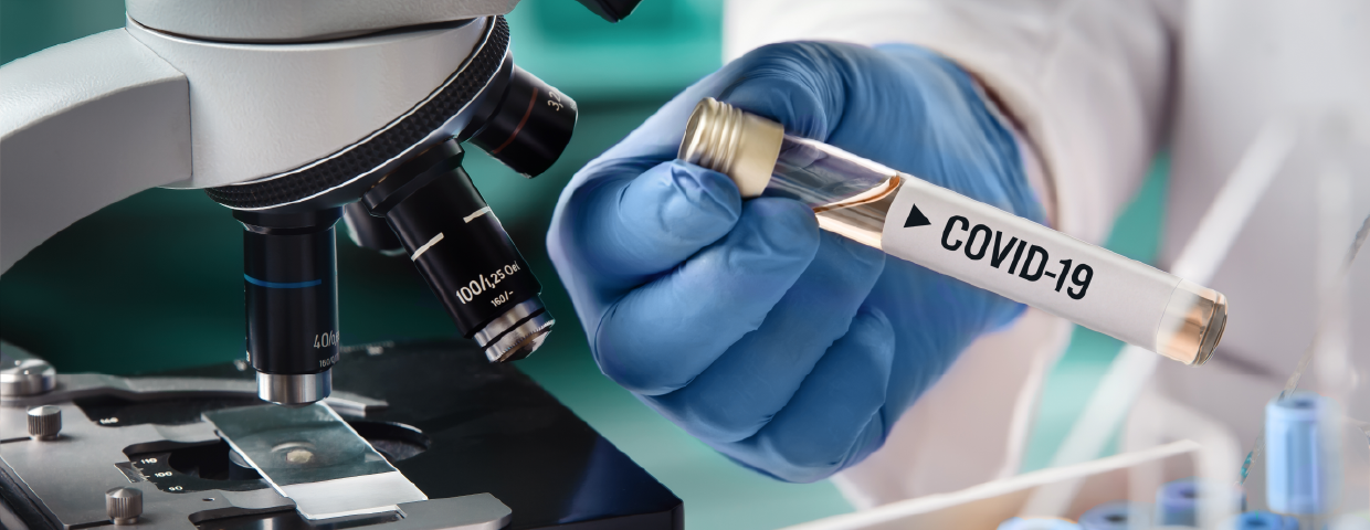 All about the COVID-19 Test provided by Tide Laboratories